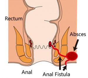 Fistula ani adalah