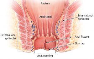 anal fisura